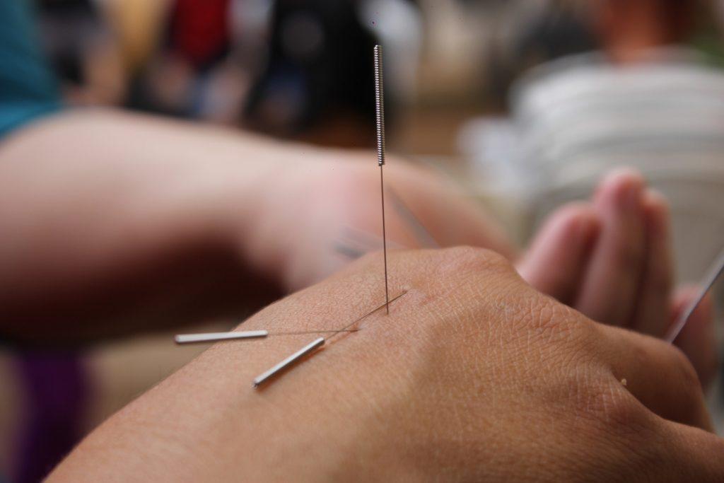 Acupuncture femme enceinte